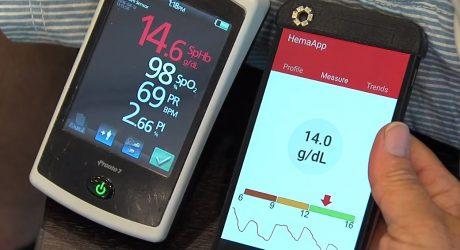 Google acquisisce Senosis Health e si prepara a rivoluzionare la telemedicina
