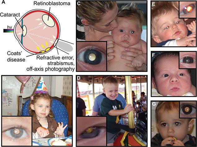cradle app patologie oculari